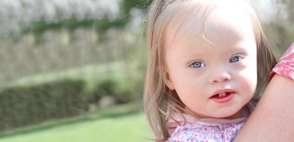 Down-szindrómás gyermek