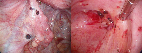 Endometriózis